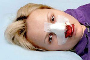 اتفاق وحشتناکی که بعد از عمل بینی برای این زن رخ داد + عکس