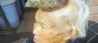 پیرزنی که روی سرش شاخ شبیه گوزن رشد کرده است + عکس