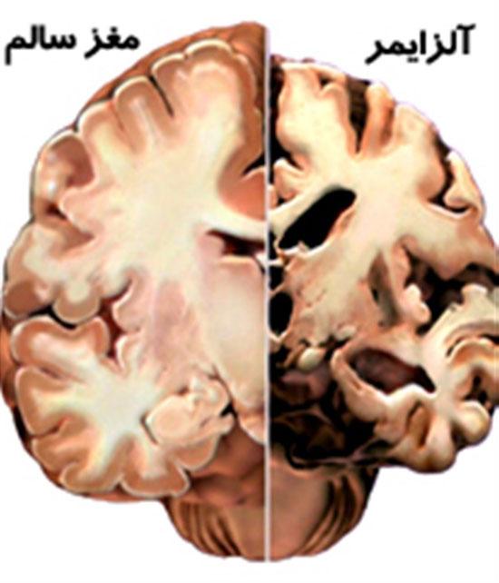 همه چیز درباره آلزایمر و نحوه رفتار و مراقبت از کسانی که آلزایمر دارند