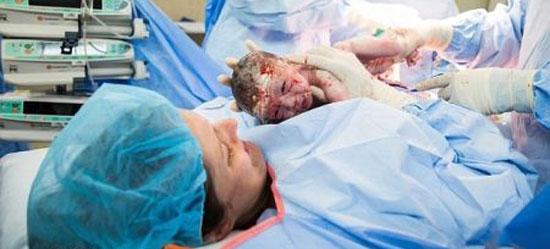 مادری که در عمل سزارین خودش نوزاد را از رحم بیرون کشید + عکس