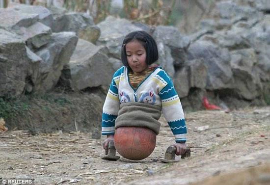 دختری که پاهایش یک توپ بسکتبال است + عکس