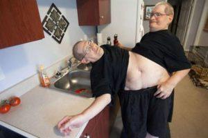 مردان دوقلو 63 ساله با یک بدن و 2 سر + عکس 18+