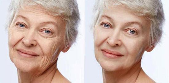 ترفند های عالی برای کاهش چین و چروک پوست صورت