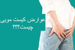 کیست مویی علائم، عوارض، عکس و روشهای درمان خانگی