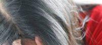3 عامل مهم و اساسی که باعث میشود مو زودتر سفید شود