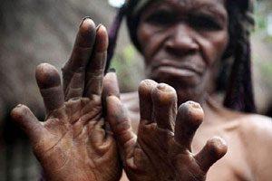 زنی که برای شادی روح کسی که مرده انگشتان دستش را قطع کرد!