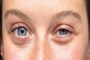 علت پف آلود شدن چشم و راه های درمان آن