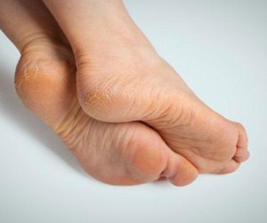 علت خشکی کف پا و راه های درمان آن