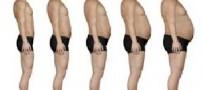 علل کمردرد است و چاقی