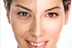 3 مرطوب کننده طبیعی پوست