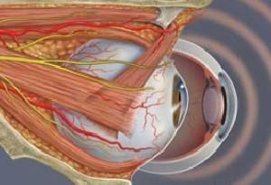 بیماری تیروئید چشمی