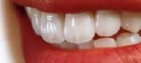 اهمیت دندانهای شیری در چیست؟