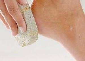 علت ترک های پاشنه پا خشکی چیست؟