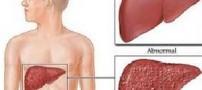 آیا کبد چرب قابل درمان است؟