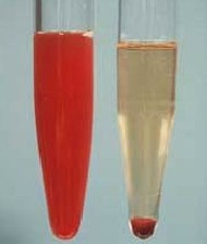 وجود خون در ادرار را چگونه می توان تشخیص داد؟