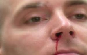 آیا بینی شما خون می آید؟