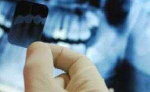 شایع ترین دندان های نهفته