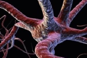 بیماری نادر PNS چیست؟