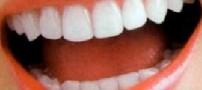 برای داشتن دندان های سفیدتر