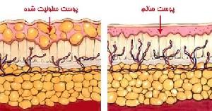 سلولیت چیست و چگونه بوجود می آید؟