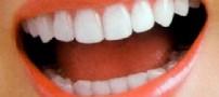 می خواهید دندان های سفیدی داشته باشید