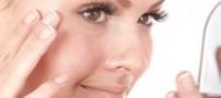 پوست کلاژنی چگونه است؟