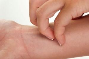 حساسیت پوستی و دیابت