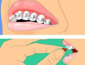 ارتودنسی روشی برای نظم دندانها