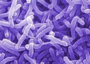 بیماری وبا و راه های پیشگیری