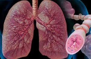 چگونگی مقابله با بیماری آسم