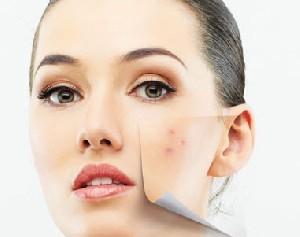 راه هایی برای درمان جوش صورت