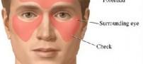 سینوزیت چگونه بیماری است؟