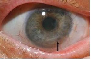بیماری التهاب قرنیه چشم