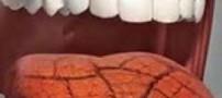 دلیل خشکی دهان در افراد چیست؟