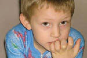 بررسی علت و روش های درمان ناخن جویدن در کودکان