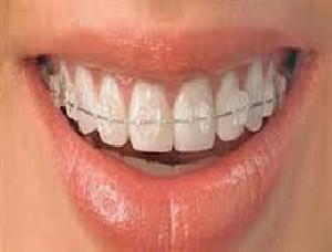 ارتودنسی دندان ها و نکات دانستنی درباره آن