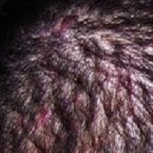 علل ایجاد جوش در پوست سر و راه های درمان آن