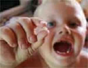 دندان شکسته کودک خود را دور نیندازید!