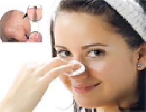 راه هایی برای محو کردن دانه های سر سیاه  روی بینی