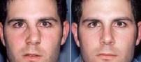 بررسی علل شکستگی بینی و درمان آن