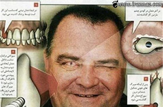 پیوند عجیب و باورنکردنی دندان به جای چشم! (عکس)
