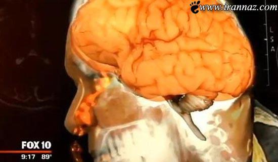 مغز این مرد عجیب از بینی اش چکه می کند!! (عکس)