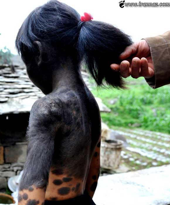 دختری عجیب با بدنی باورنکردنی و وحشتناک!! (عکس)