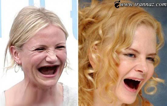 عکس های خنده دار از زنان زیبای هالیوود بدون دندان!