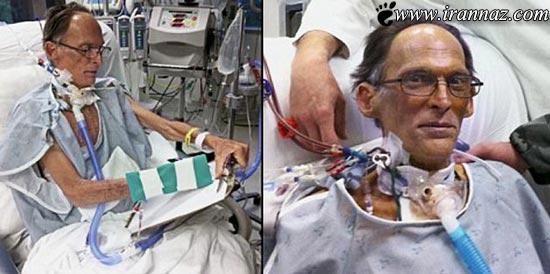 این مرد بینوا مجبور است بدون قلب زندگی کند (تصاویر )