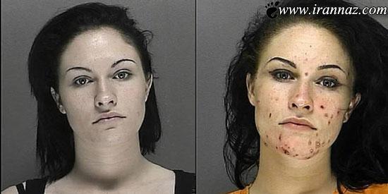 عکس های عوارض مصرف شیشه بر روی صورت این زنان