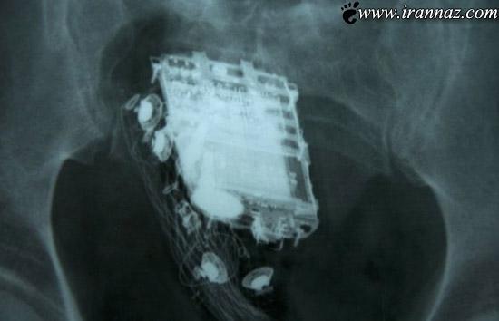 جاسازی باورنکردنی موبایل در شکم زن زندانی (+تصاویر)