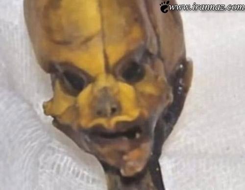 اسرار پزشکی اسکلتی شبیه موجودات فضایی! (عکس)