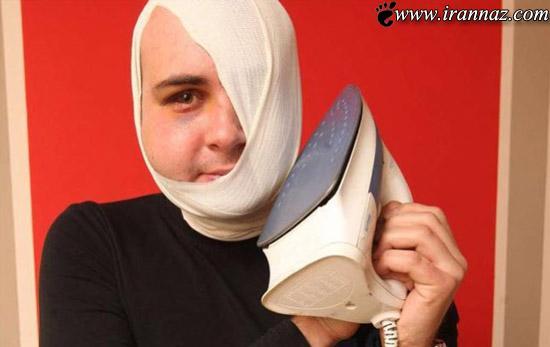 عاقبت دردناک گذاشتن اتو به گوش بجای گوشی تلفن!!