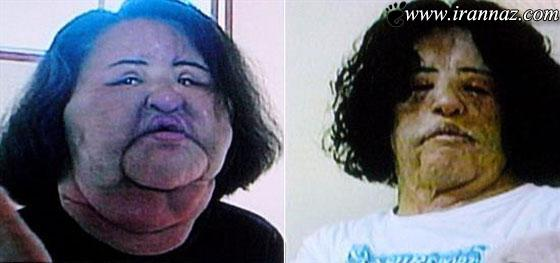 این مانکن زن میخواست زیباتر شود، ولی وحشتناک شد